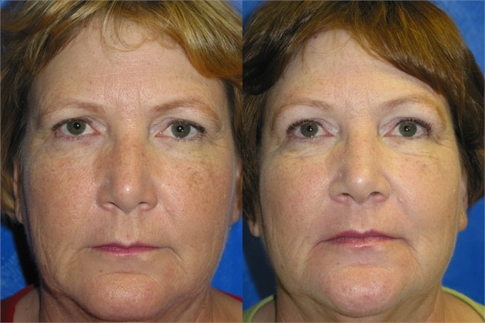 Browlift-Patient-Before-1_1