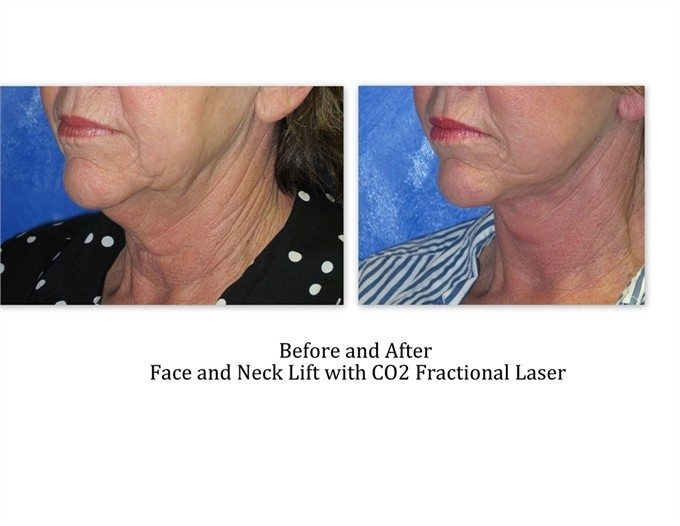 Face-and-Neck-lift