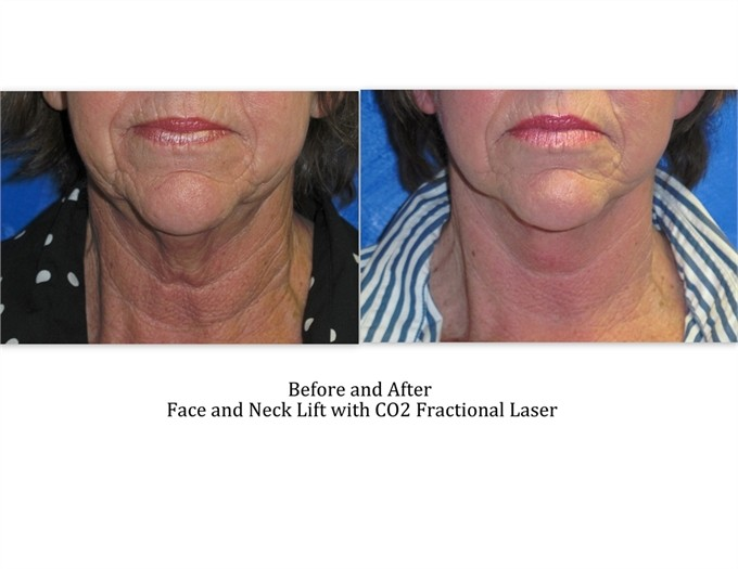 Face-and-neck-lift-with-laser