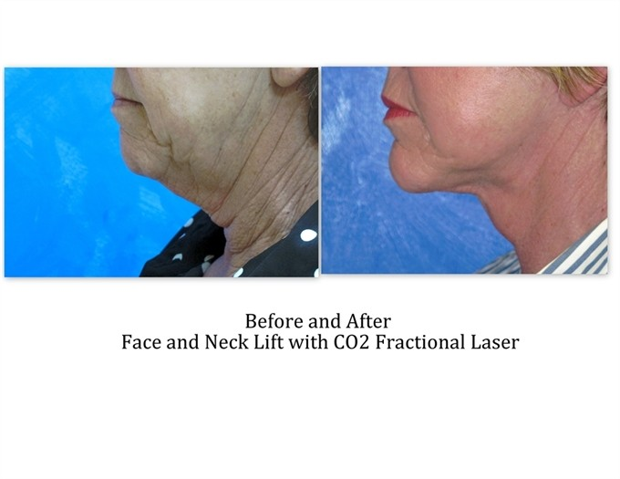 Face-and-neck-lift-with-laser_1