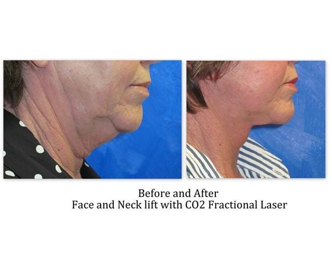 Face-and-neck-lift-with-laser_2