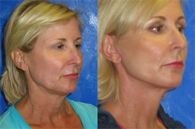Facelift-Before-and-After_2