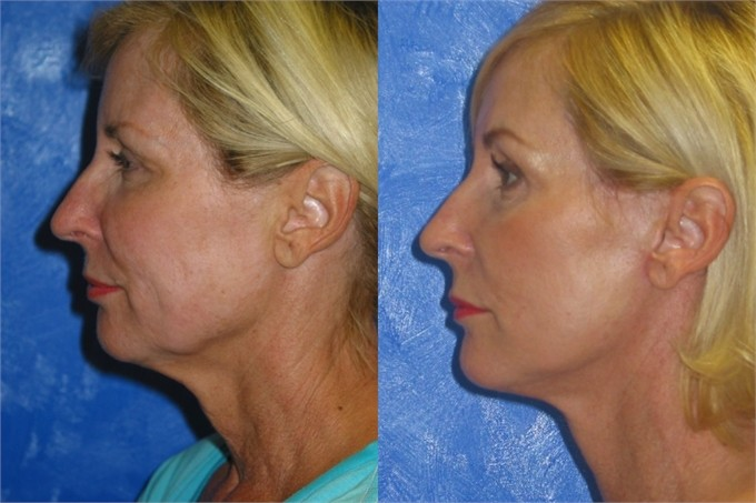 Facelift-Before-and-After_5