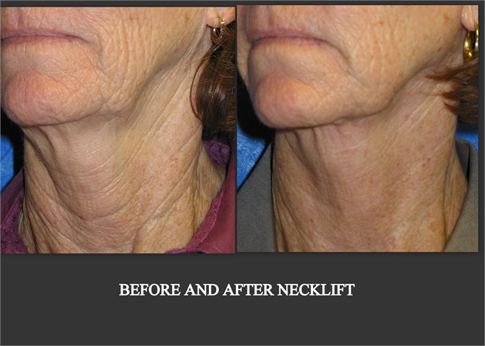 before and after necklift