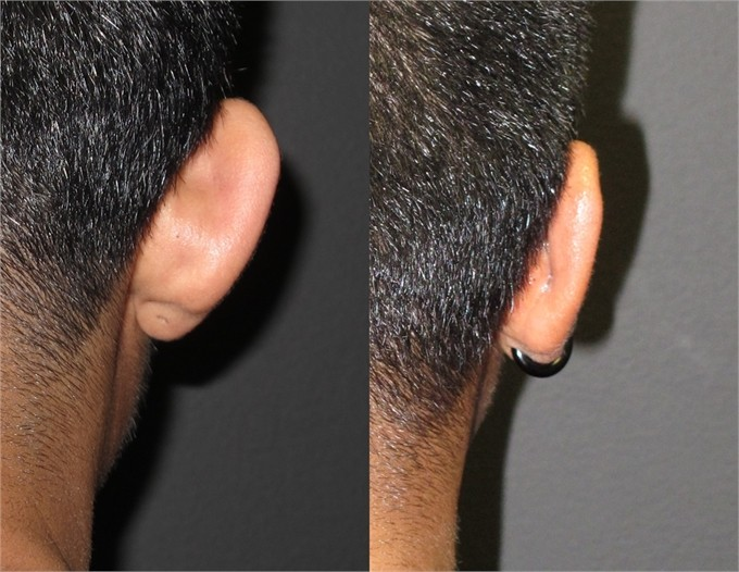 before and after otoplasty