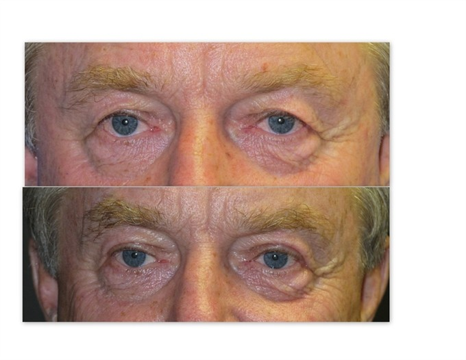 upper-blephs-with-brow-lift