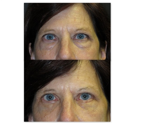 upper-blephs-with-brow-lift_1