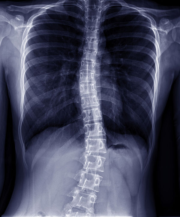 person with scoliosis about to undergo alif spine surgery with sierra spine institute