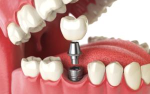 Dental Implants - Materials