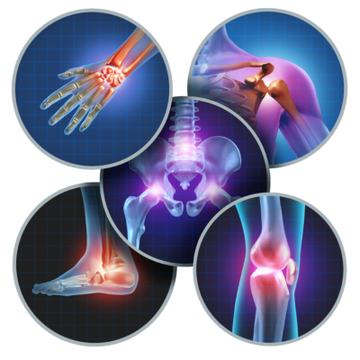 Relieving Arthritis Pain