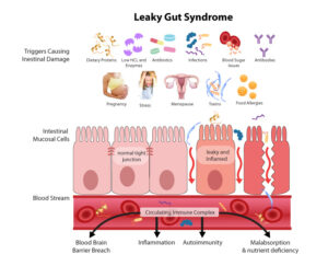 Leaky-Gut-Syndrome (1)