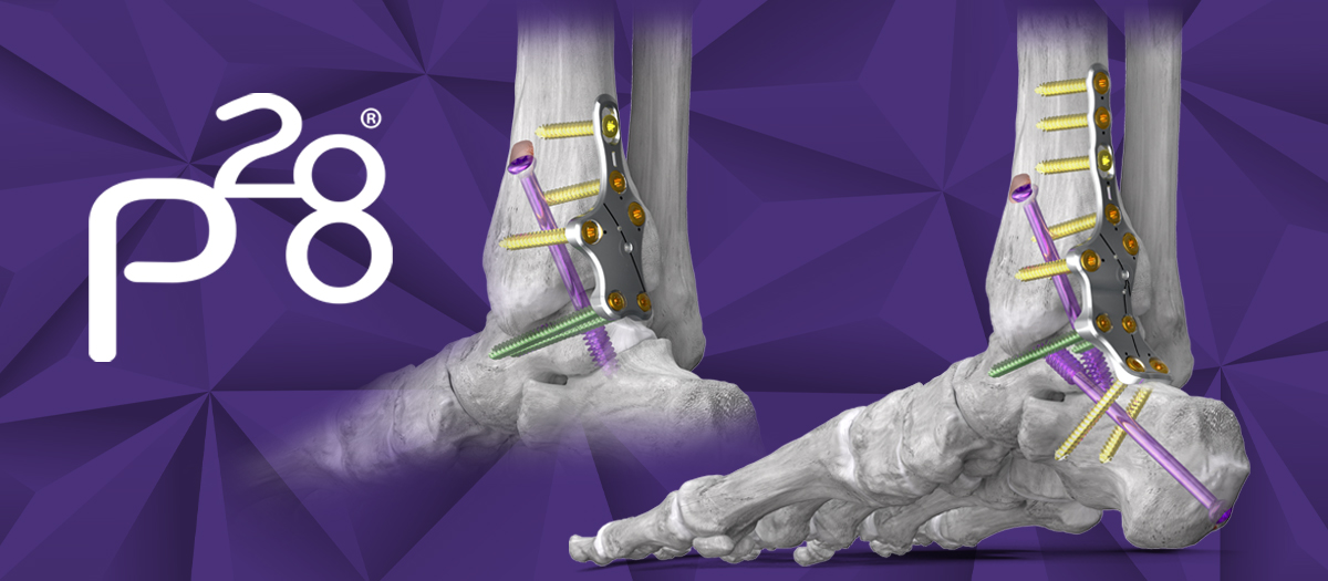 Silverback™ Ankle Fusion Plating System