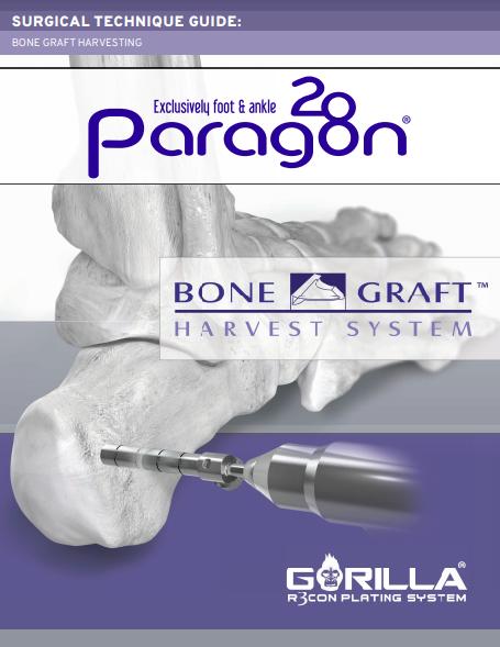 Bone Graft Harvest System Surgical Technique Guide (US)