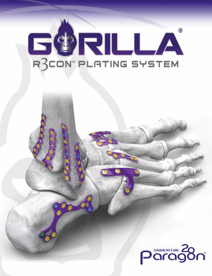 Gorilla® R3con Plating System Brochure