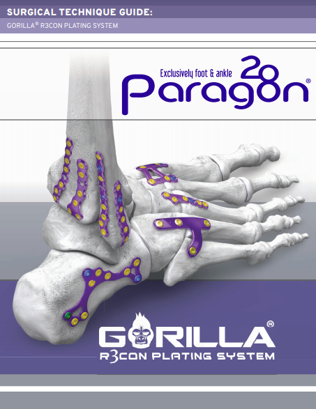 Gorilla® R3con Plating System Surgical Technique Guide (CAN)