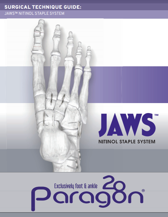 JAWS™ Nitinol Staple System Surgical Technique Guide (CE Marked)