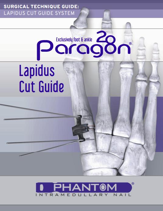 Lapidus Cut Guide System Surgical Technique Guide (US)