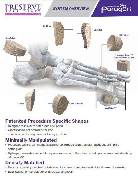 PRESERVE™ Bone Wedge System Brochure