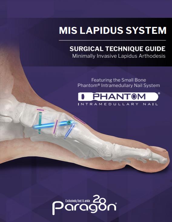 Phantom® MIS Lapidus Surgical Technique Guide (US)