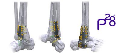 Silverback(TM) Straddle