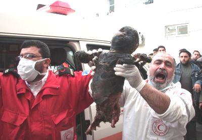 burnt_palestinian_child