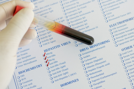 Lab Tests – Urinalysis & Iodine Levels