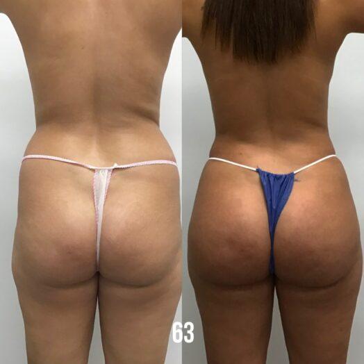 Brazilian Butt Lift - Before & After