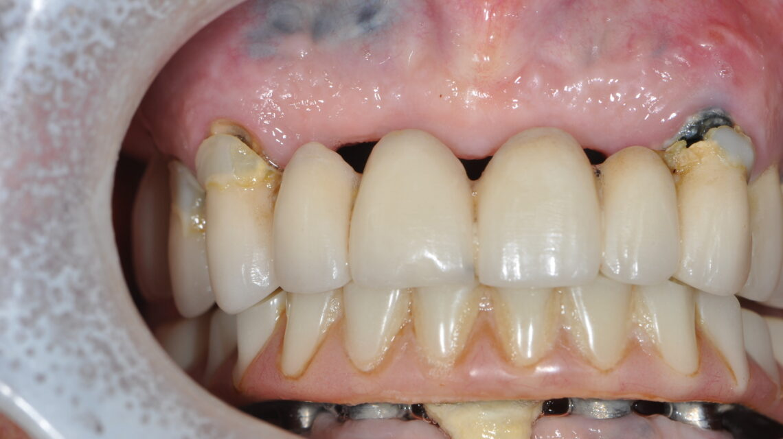 Steier Dental Boca Raton | Repairing Detached Bridge