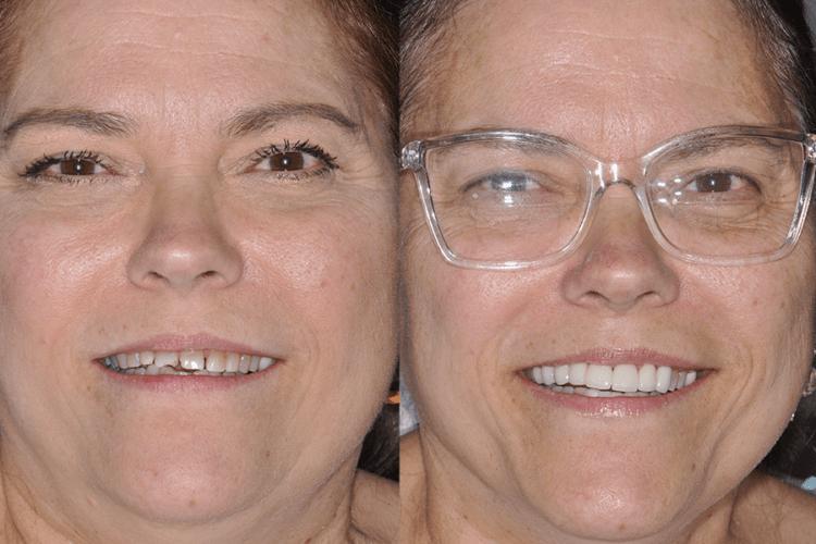 Steier Dental | Prosthetic Orthodontics