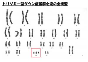 PGS 染色体異常