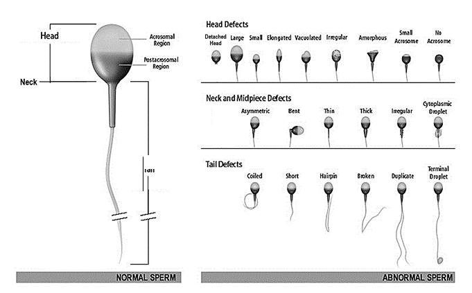 男性の精子検査