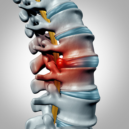 Herniated Discs in Madison, OH