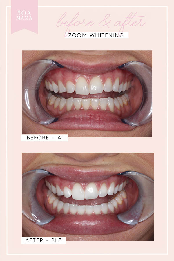 30A Mama Destin Center for Cosmetic Dentistry Zoom before and after