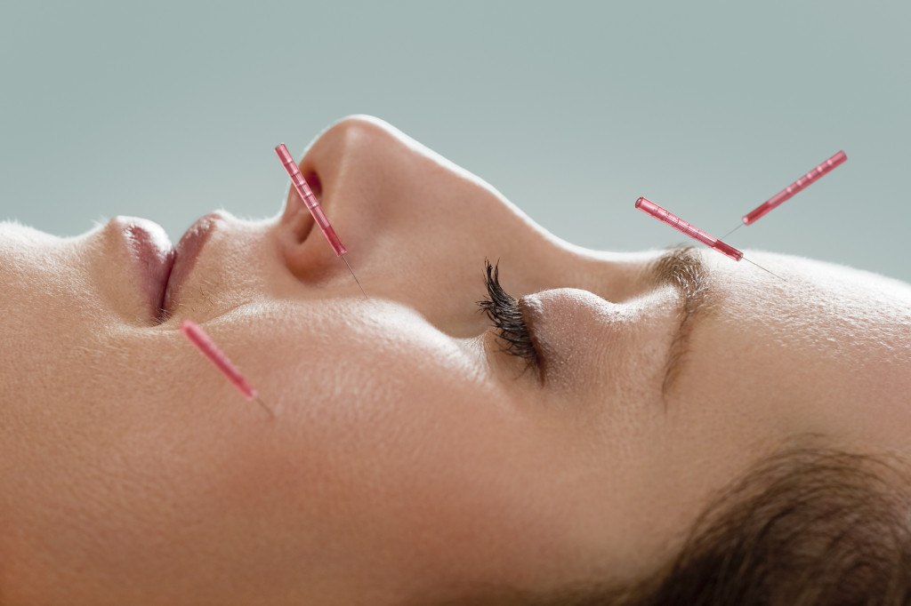 Acupuncture Treatment - South Reno