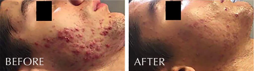 LaVida Massage and Skincare, Celluma LED Therapy, Celluma, LED, Anti-Acne, Acne Treatment