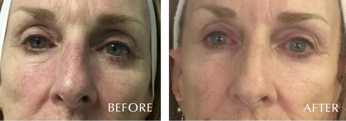 LaVida Massage and Skincare, Celluma LED Therapy, Celluma, LED, Anti-Agina, Fine lines & Wrinkles