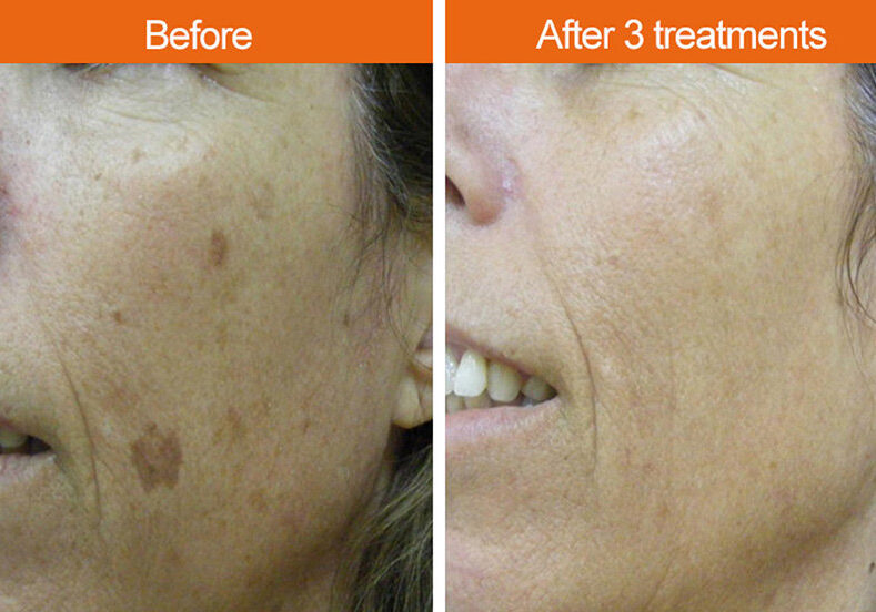 Before-After Age Spots Face
