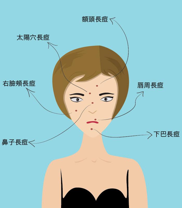 改善痘痘的飲食法則!從臉部位置看那裡需要「排毒」