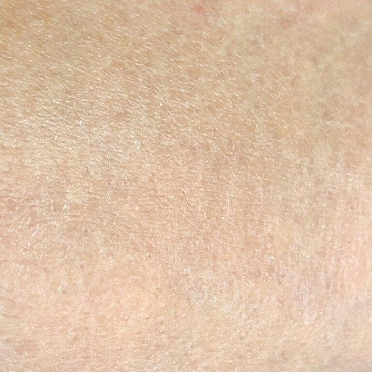 【保養知識】季節交替皮膚狂脫皮?避開三大地雷行為告別乾燥脫屑重現潤澤健康肌