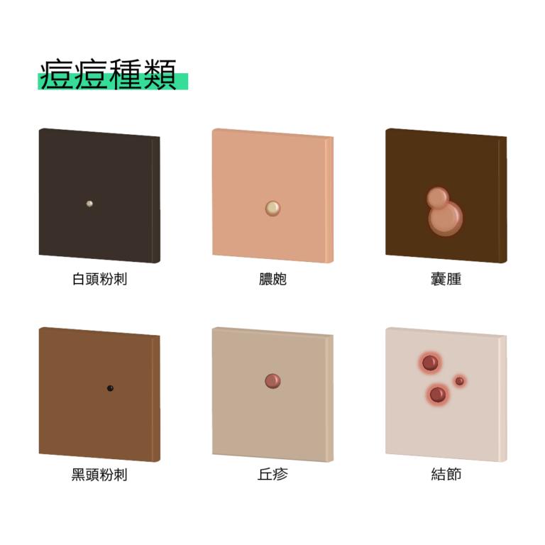 【肌膚保養速成班】痘痘大分類,臉上的痘痘是哪一種?