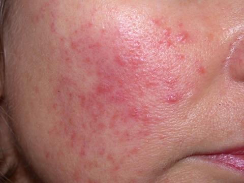 「敏感肌膚」還是「肌膚過敏」,你是哪一種?如何舒緩?