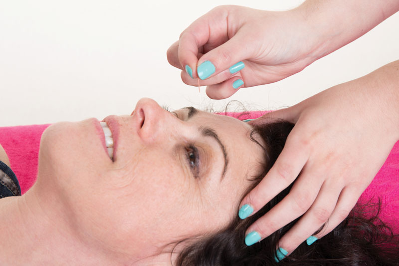 Slow Down the Aging Process with Cosmetic Acupuncture