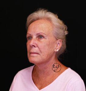 RG HALO, face + neck lift After
