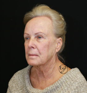 RG HALO, face + neck lift Before