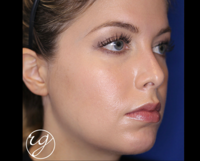 RG buccal fat pad removal + VASER chin lipo + filler in jaw and chin Before
