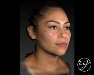 RG buccal fat pad removal + VASER chin lipo + filler in jaw and chin After