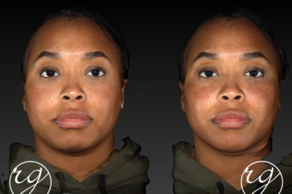RG filler in under eye, chin, jaw Before V After