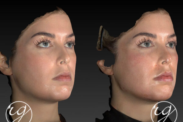 RG buccal fat pad removal + VASER chin lipo + filler in jaw and chin Before V After