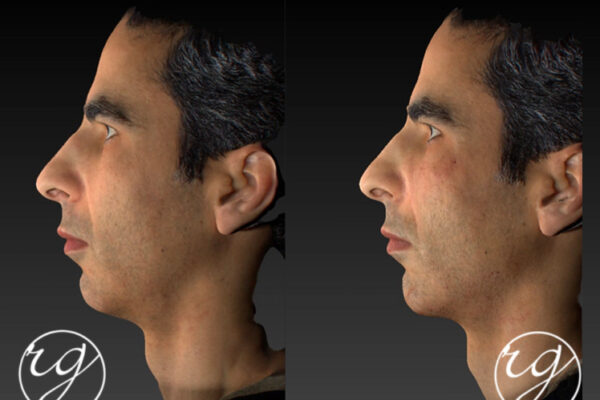 RG filler in chin + jaw Before V After