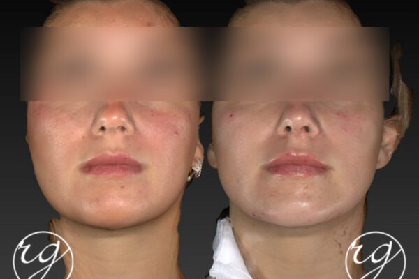 RG filler in lips, chin and jaw Before V After